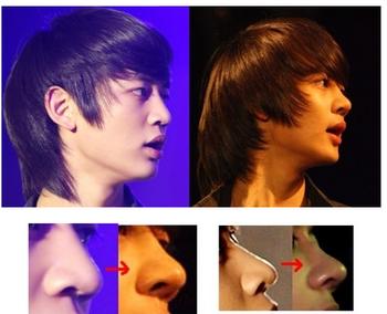 ミノの整形前と整形後の写真